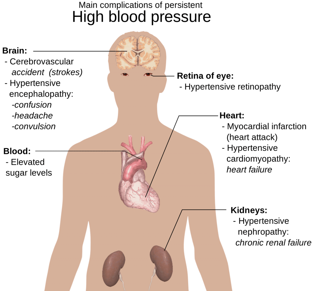 High Blood Pressure in Seniors