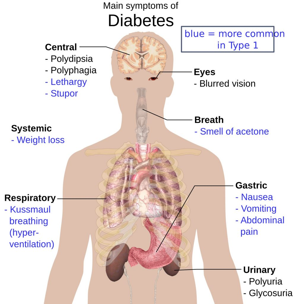 Diabetes In Elderly