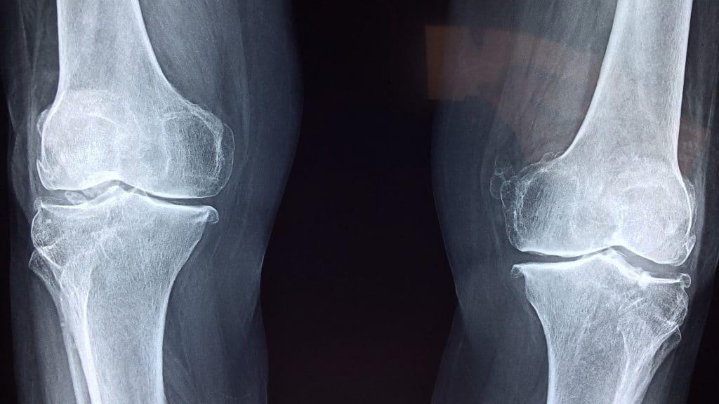 Osteoporosis Treatment