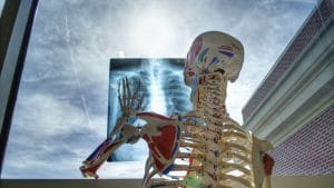 Osteoporosis Treatment Q&A: All You Need to Know